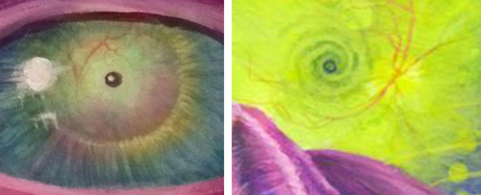eyescans